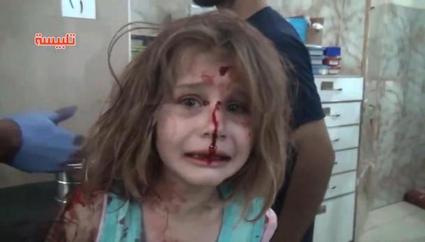 Aya, 8 anni, ferita dalle bombe grida papà: video shock sulla guerra